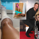My Celebrity Life – Katie Price is registered disabled after breaking both feet on holiday Picture Rex