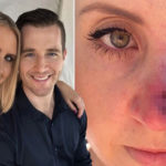 My Celebrity Life – Lauren discovered she had skin cancer after spotting a pimple on her nose Picture laurenhuntriss