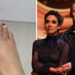 My Celebrity Life – Myleene Klass treated for broken toe and torn meniscus Picture InstagramITV
